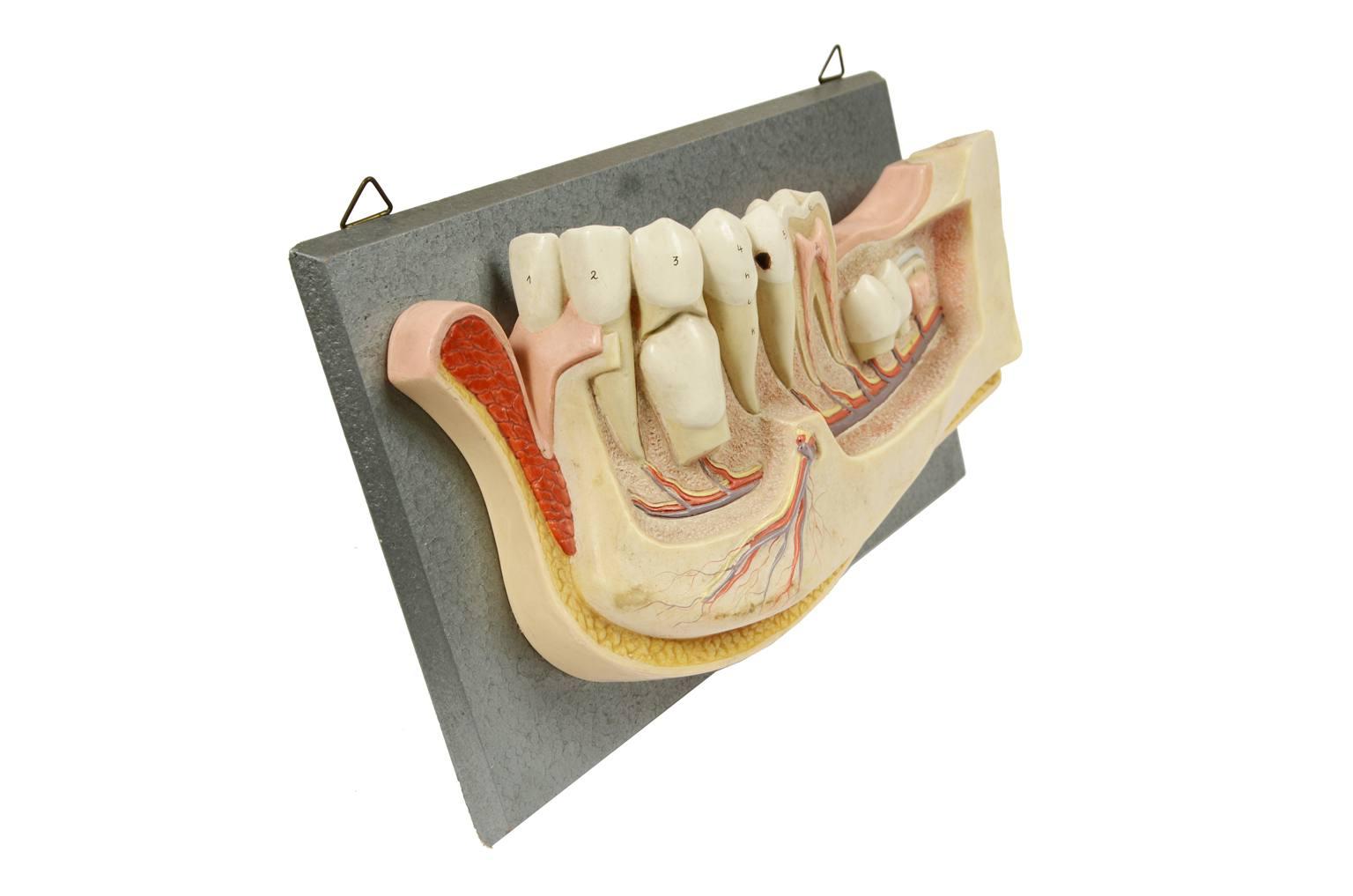 Strumenti medici d'epoca/541A-Modello mandibola
