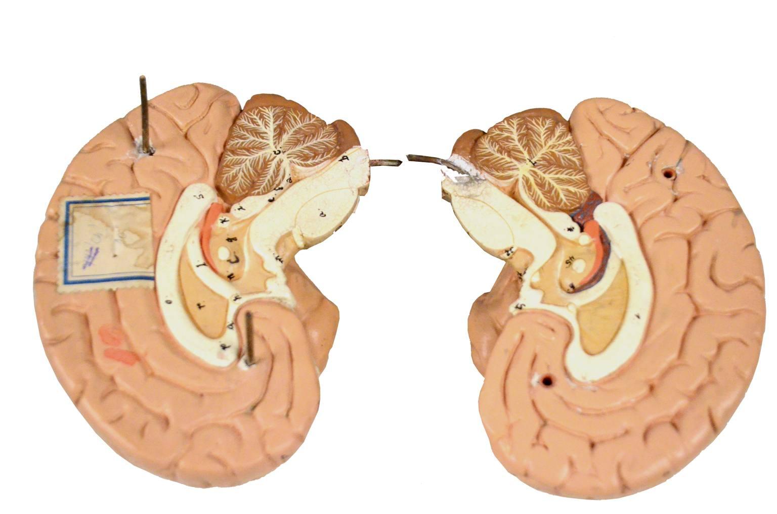 Strumenti medici d'epoca/5634-Modello cervello