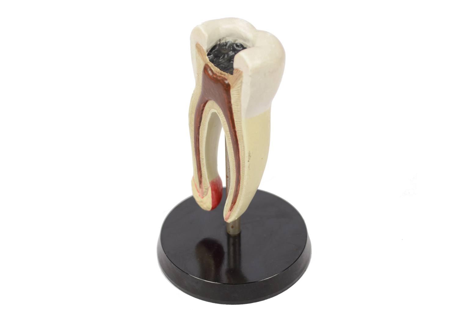 Strumenti medici d'epoca/6136A-Modello molare