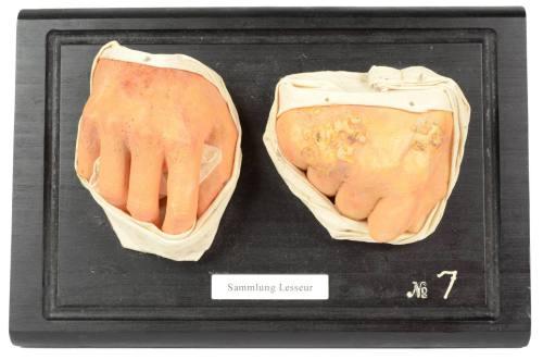 古医疗器具/4250-50年代非平常的蜡制品/更多信息